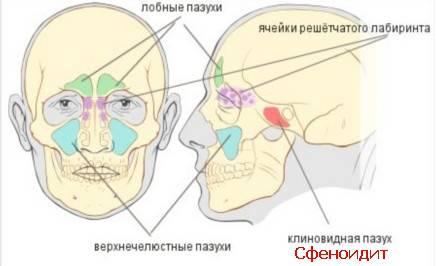 воспаление клиновидной пазухи симптомы лечение