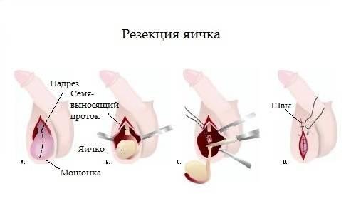 воспаление левого яичка симптомы лечение