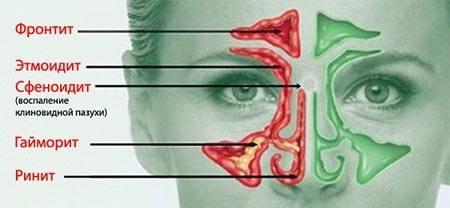воспаление лобных пазух симптомы лечение