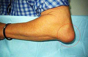 воспаление локтевого сустава симптомы лечение