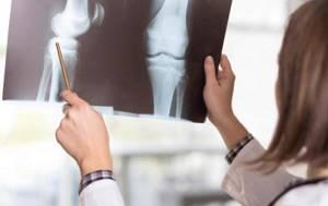 воспаление мениска симптомы и лечение