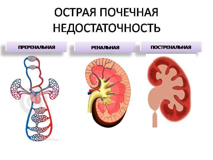 воспаление мочеполовой системы симптомы лечение