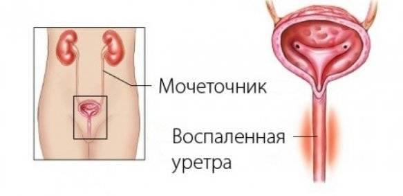 воспаление мочеточника симптомы лечение