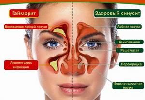 воспаление мозговых оболочек симптомы лечение