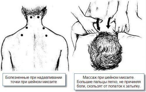 воспаление мышц симптомы и лечение