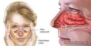 воспаление носовой перегородки симптомы лечение
