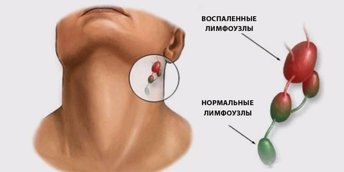 воспаление околоушного лимфоузла симптомы лечение