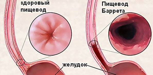 воспаление пищевода лечение симптомы