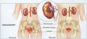 воспаление почек симптомы причины лечение