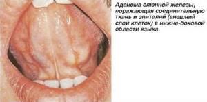 воспаление подъязычной железы симптомы лечение