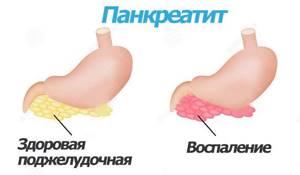 воспаление поджелудочной симптомы лечение