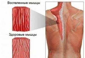 воспаление предплечье симптомы и лечение