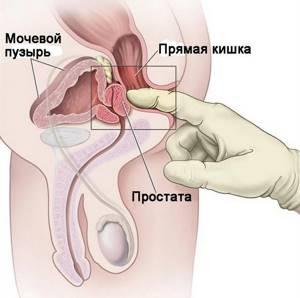 воспаление предстательной железы лечение симптомы