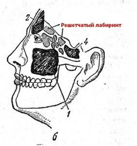 воспаление решетчатой пазухи симптомы лечение