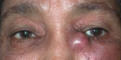 воспаление слезного мешка симптомы лечение