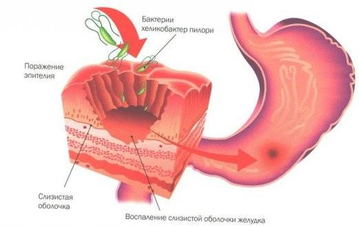 воспаление слизистой желудка симптомы лечение