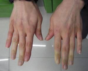 воспаление соединительной ткани симптомы лечение