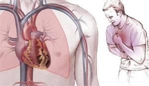воспаление средостения симптомы и лечение