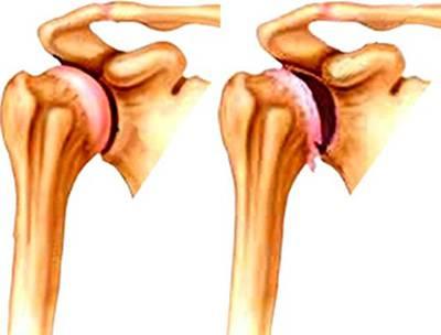 воспаление сустава плеча симптомы лечение