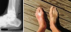 воспаление связки стопы симптомы лечение