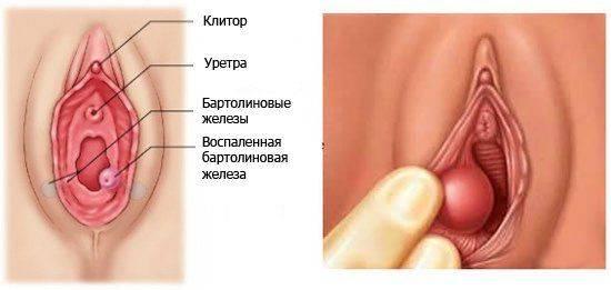 воспаление в гинекологии симптомы лечение