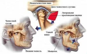 воспаление внчс симптомы лечение