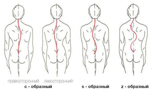 воспаление ягодичной мышцы симптомы лечение