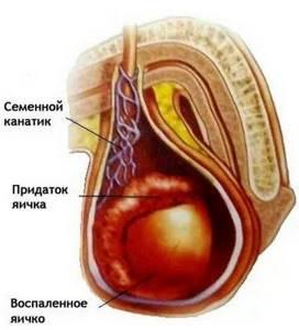 воспаление яйца симптомы и лечение