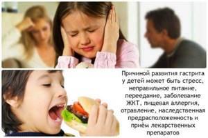 воспаление желудка симптомы лечение