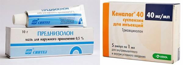 высыпания на молочной железе причины симптомы лечение