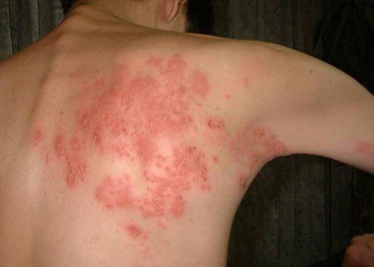 заразен ли опоясывающий лишай симптомы лечение
