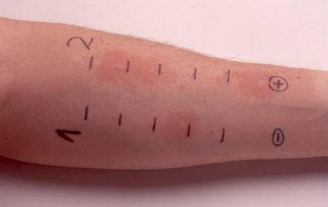 аллергия у ребенка симптомы лечение