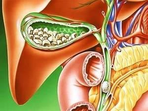 бескаменный холецистит симптомы лечение народными средствами