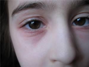 блефарит симптомы и лечение у ребенка