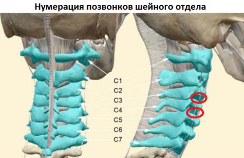 цервикалгия слева шейного отдела симптомы и лечение давит в горле