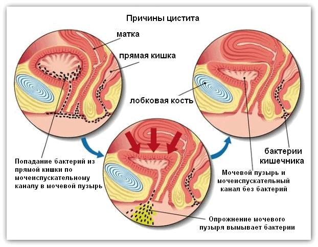 цистит у девочек 11 лет симптомы и лечение