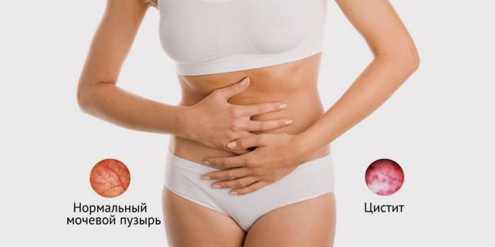 цистит у девушек симптомы и лечение в домашних условиях