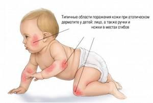 дерматит у ребенка симптомы и лечение
