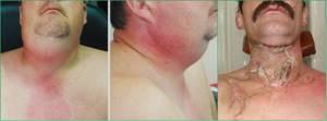 флегмона шеи симптомы лечение