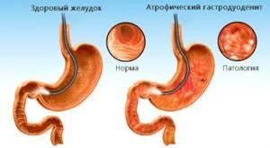 гастродуоденит у ребенка симптомы лечение