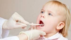 герпес горла у ребенка лечение симптомы