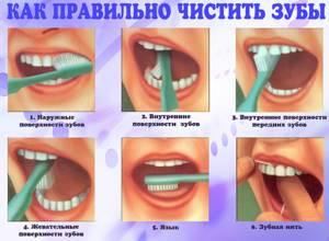 гингивит симптомы и лечение у ребенка