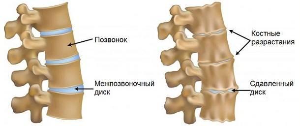 гипертонус мышц шеи у взрослого симптомы и лечение