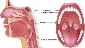 гланды воспаление симптомы лечение у взрослых