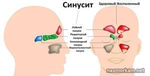 гнойный синусит у ребенка симптомы лечение