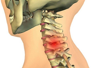 Как лечить шейный хондроз лечение шейного хондроза Лечение ...