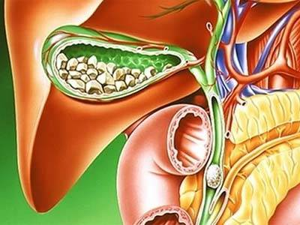 калькулезный холецистит симптомы и лечение народными средствами