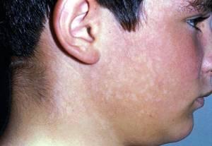 коричневый лишай у человека симптомы лечение