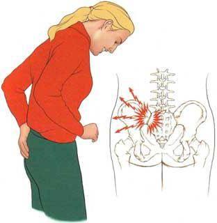 крестцово подвздошное сочленение воспаление симптомы лечение