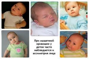 кривошея у ребенка симптомы лечение